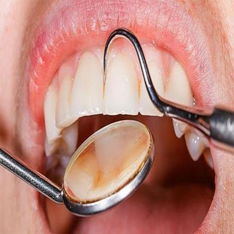 Periodontitis also causes hypertension.