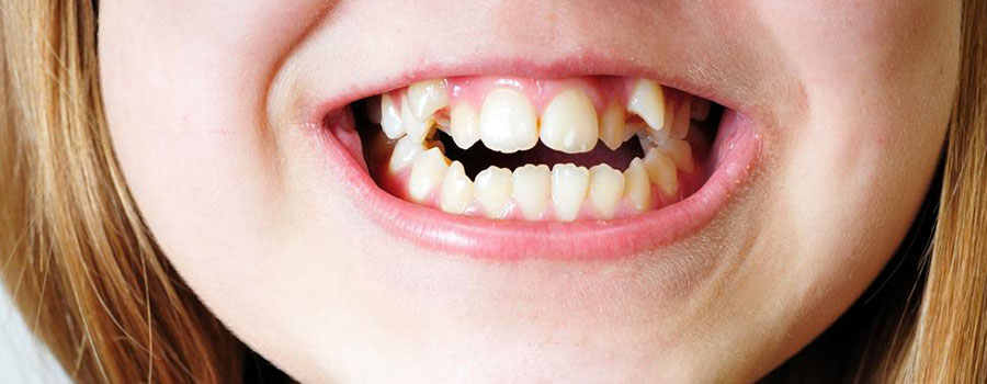 Why it is important to have your teeth aligned