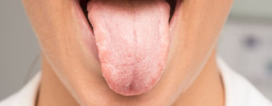 The White Tongue: the enigma of bad breath