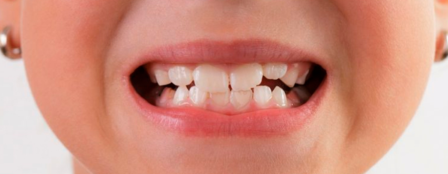 Your teeth influence the way you speak