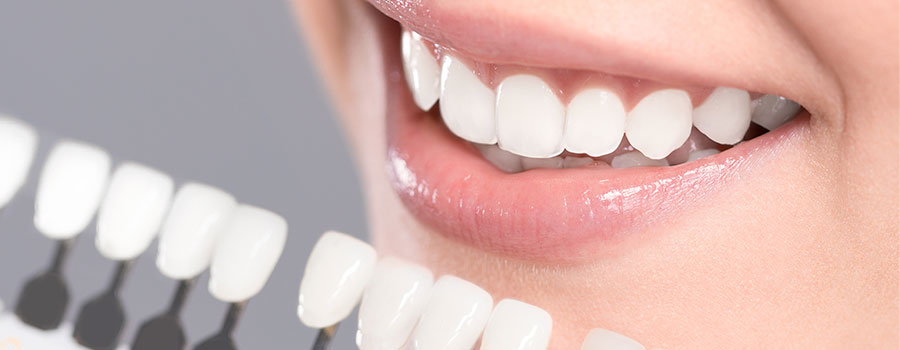 Myths and truths about dental veneers
