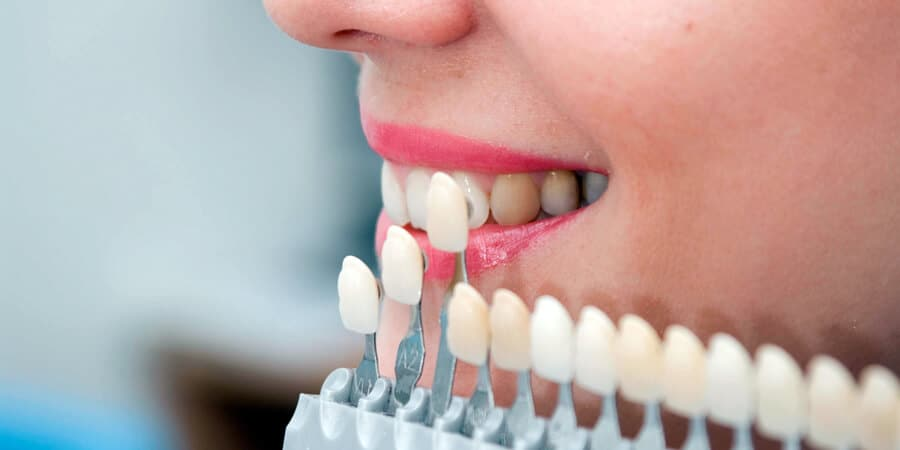 Dental crowns: what types there are, in which cases they are used and how long they last